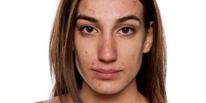 Behandlung von Akne mit Rizinusöl