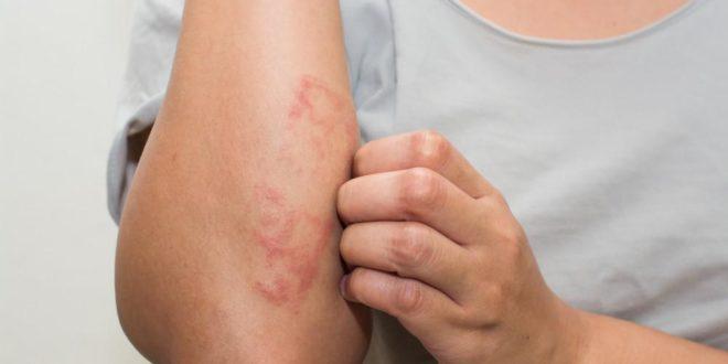 3 Tipps zum Entfernen trockener Haut aufgrund von Ekzemen